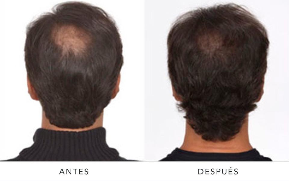 alopecia2-AD