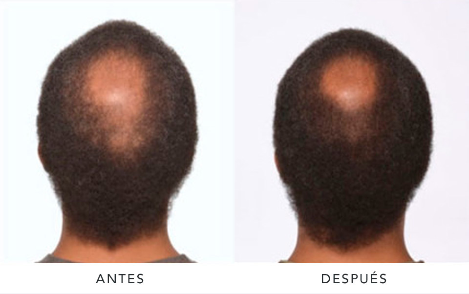 alopecia3-AD