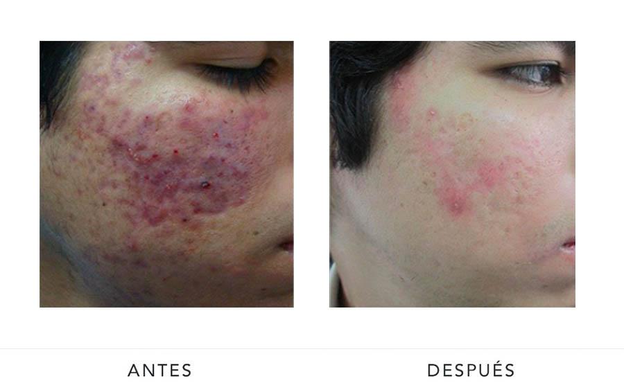 AD-acne1