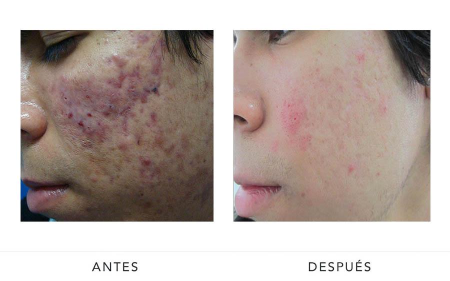 AD-acne2