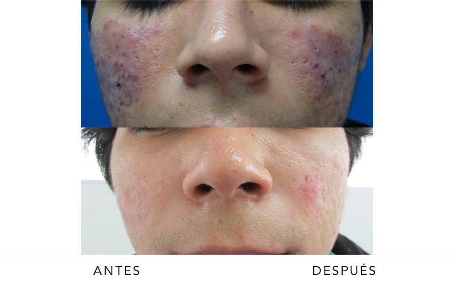 AD-acne3