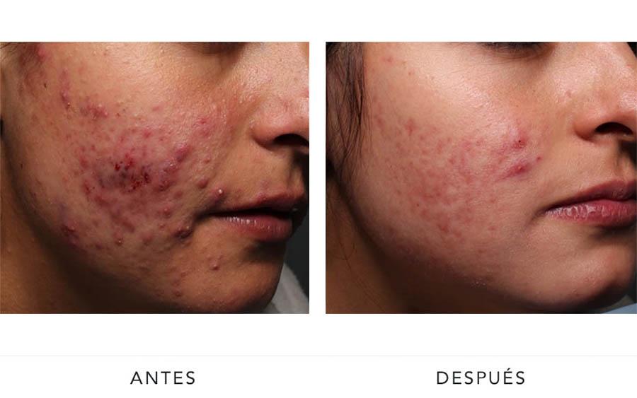 AD-acne4