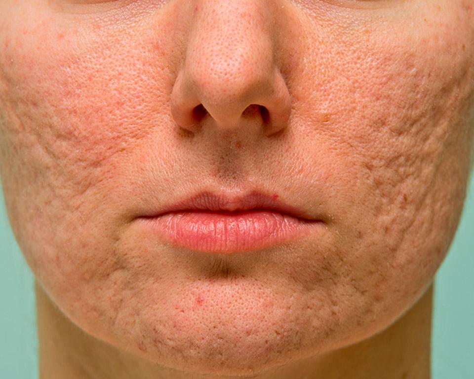 laser-cicatrices.acne